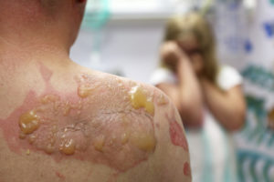Burn Injury Lawyer, Orange County CA